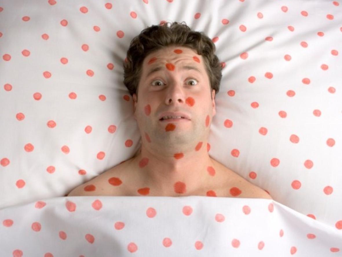 Morbillo: un allarme preannunciato?